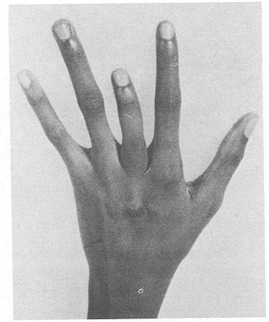 Finger shortened by sickle-cell trait